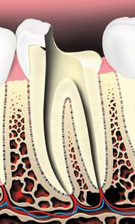 The pulp and nerve are removed, and the root canals inside the tooth are cleaned shaped, and disinfected.
