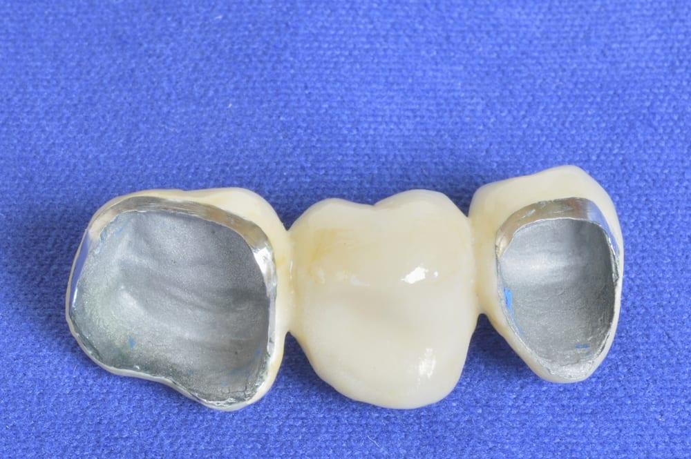 PFM Crowns Shown in a Dental Bridge