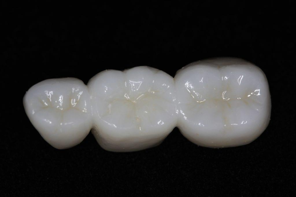 Zirconia crowns shown in a dental bridge